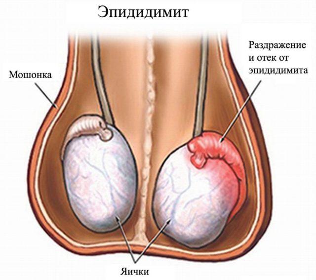 Симптомы болезни яичек у мужчин