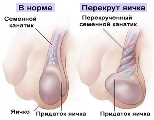 Патология яичек у мужчин