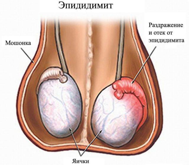 Хламидиоз инкубационный период