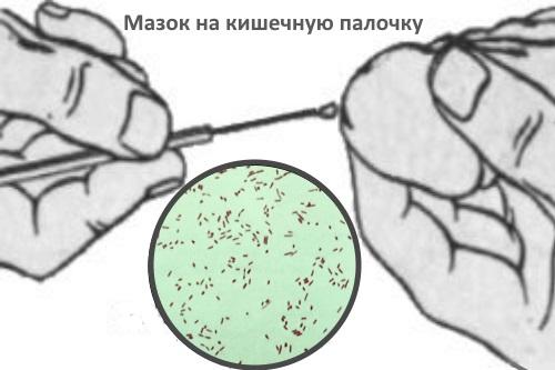 Кишечная палочка в моче у мужчин