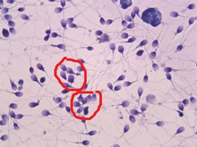 Что такое агрегация сперматазоидов в спермограмме: как лечить