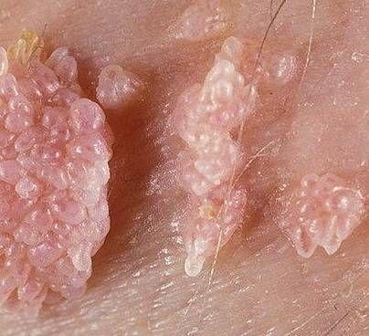 Лечение папилломавируса у мужчин как лечить ВПЧ 16 и 18 типа в домашних условиях у мужчин
