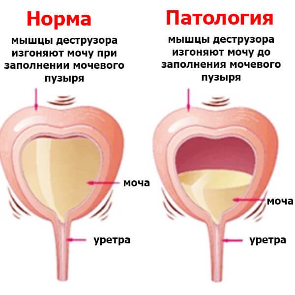 Профилактика заболеваний мочевого пузыря