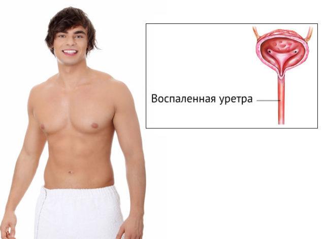 Кровь из мочеиспускательного канала у мужчин причины