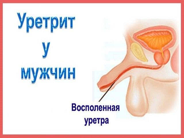 После мочеиспускания выделяется кровь у мужчин