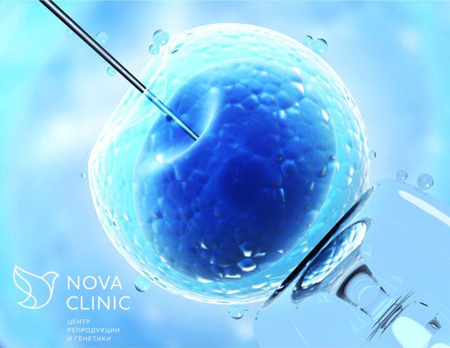 Расширенная спермограмма: выявление причин бесплодия